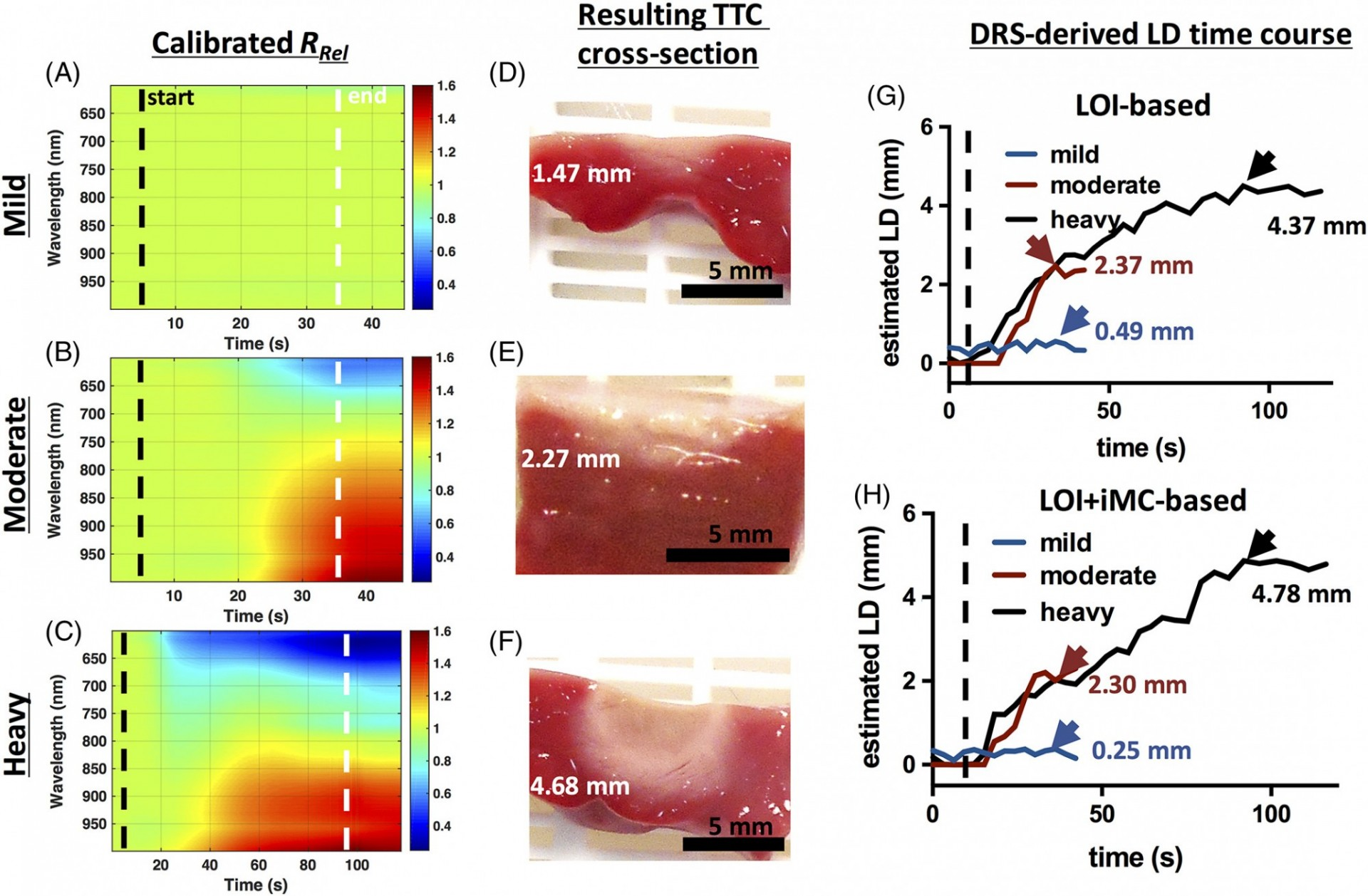 Real time tracking of lesion formation using an integrated RFA and NIRS catheter